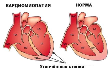 Кардиомиопатия это,диагноз