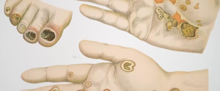 Сифилис лечение,гонорея симптомы,триппер лечение