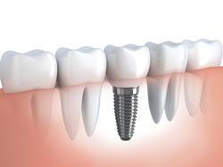цена на зубные имплантаты