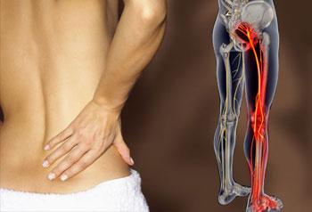 воспаление седалищного нерва народная медицина