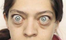 болезнь грейвса фото
