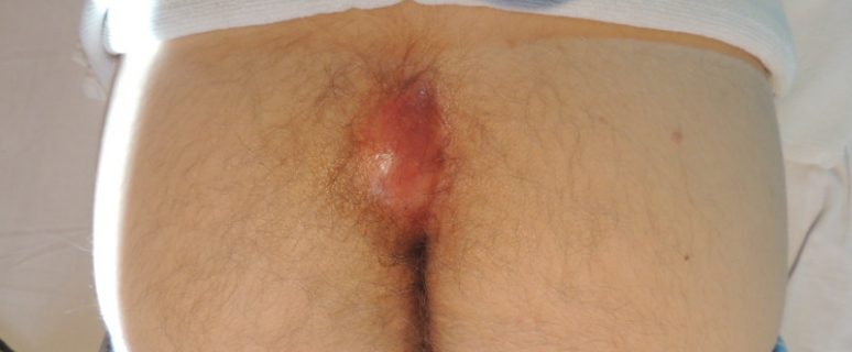 абсцесс после укола