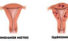 Аденомиоз тела матки лечение