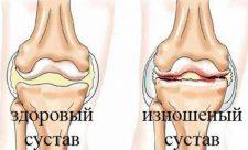 синдром осгуда-шлаттера лечение