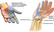 синдром запястного канала как лечить