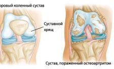 псориатический артрит лечение лекарства