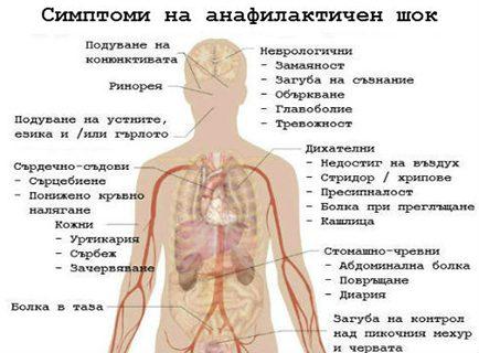 Анафилаксия