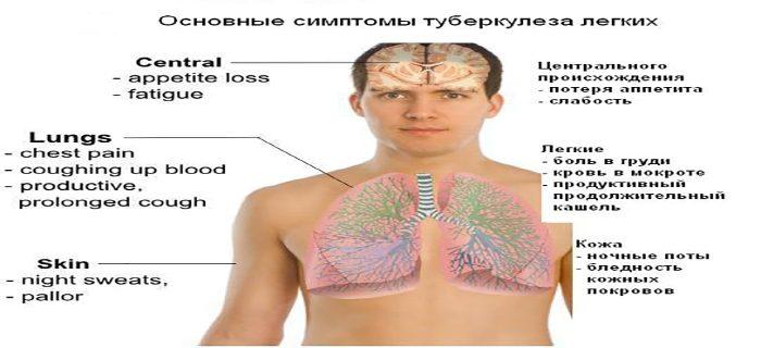как проявляется туберкулёз